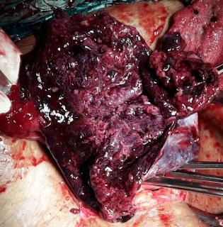 ovarian cyst nausea