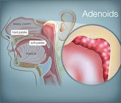 Adenoids Enlargement May Be the Reason Why Your Child Breathes With the Mouth