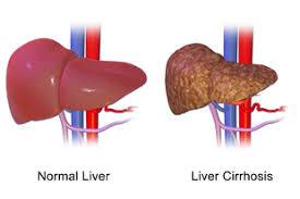 Organ Hati atau Liver