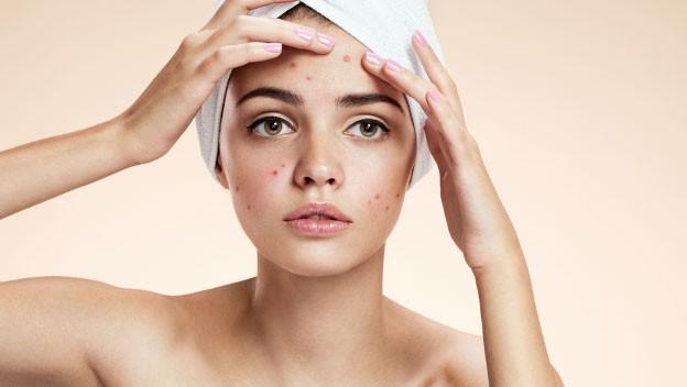 Consulta dermatologo online acne