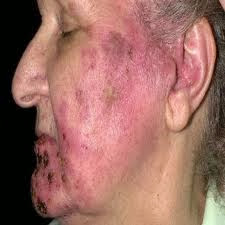 Pictures Of Shingles Rash Tips Curing Disease