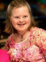 lists of famous down syndrome people