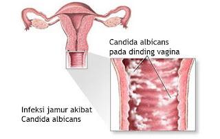 Cara merapkatkan vagina yang mulai kendur secara alami tanpa efek samping