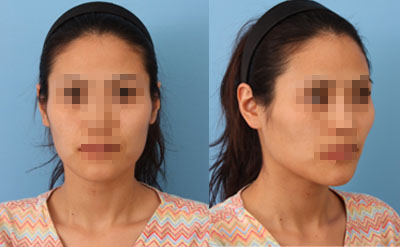 짱이뻐! - She Looked Like a Skull Before Korean Best Face Contouring Surgery