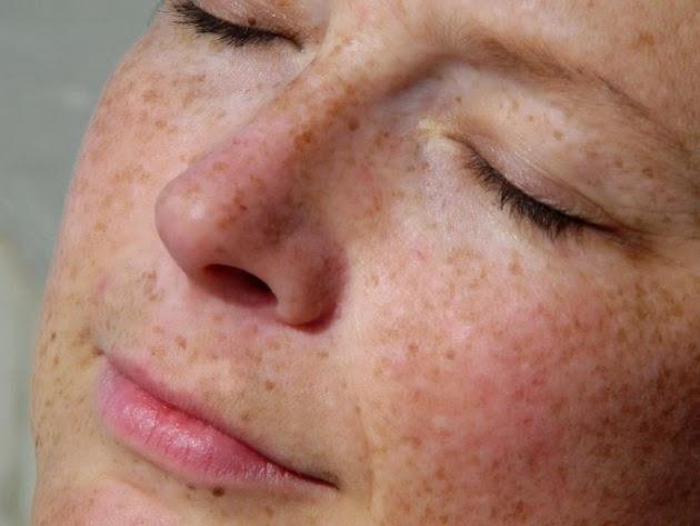 La pigmentación en la piel las manchas castañas oscuras