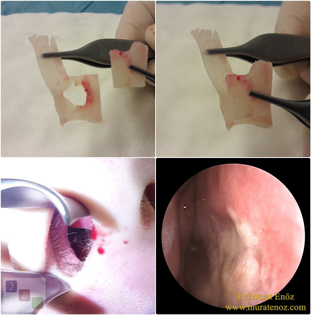 Extracorporeal septum perforation closure in Istanbul - Extracorporeal septum perforation closure in Turkey - Extracorporeal closure of nasal septal perforations subcutaneous tissue - Combining rhinoplasty with extracorporeal septal perforation repair - Repair of nasal septum Perforation