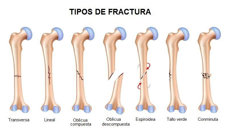 Los diferentes tipos de fracturas