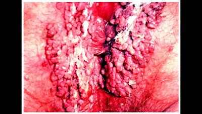 Penyakit Herpes Pada Kelamin Wanita