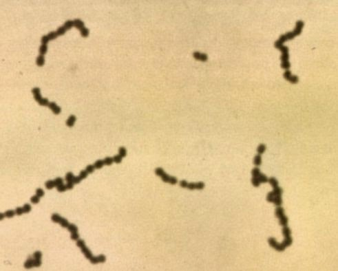 Permalink ke Bakteri Asam Laktat