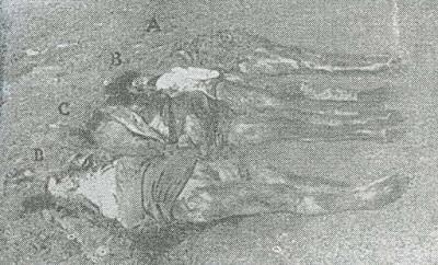 Le Tre sorelle Radecchi (Albina 21 anni, Caterina di 19 e Fosca di 17)