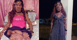 38χρονη γέννησε το δεύτερο παιδί της και το σώμα της γέμισε με χιλιάδες όγκους