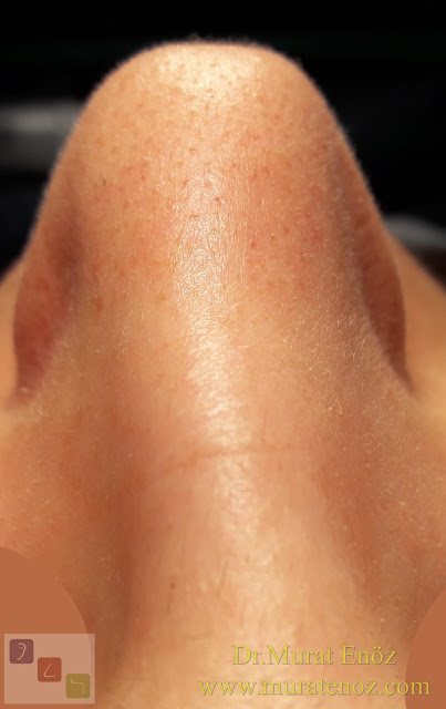 Kaudal septum deviasyonu nedir? - Kaudal septum deviasyonu tedavisi - Kaudal septum deviasyonu belirtileri - Kaudal septum deviasyonu ameliyatı - Anterior septal dislokasyon - Anterior nazal septum deviasyonu - Kaudal septoplasti