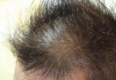 薄毛・脱毛の前兆の可能性が高い症状