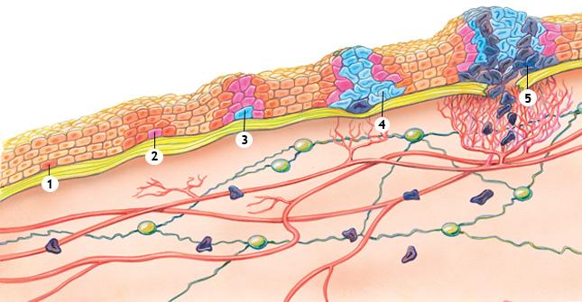 tjocktarmscancer med spridning till lymfkörtlar