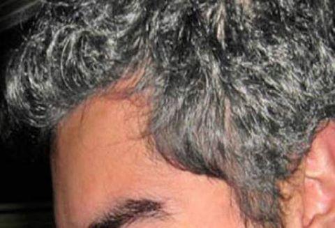 الى كل الذين يعانون من الشعر الابيض وخاصه الشيب المبكر .