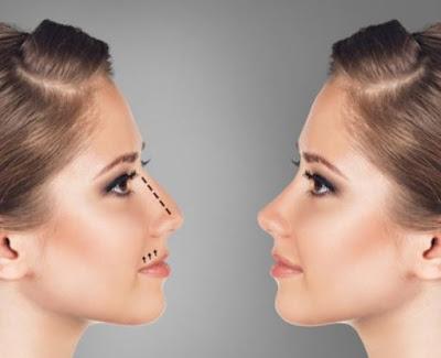 Daftar Harga Paket Operasi Hidung di Klinik Kecantikan Thailand