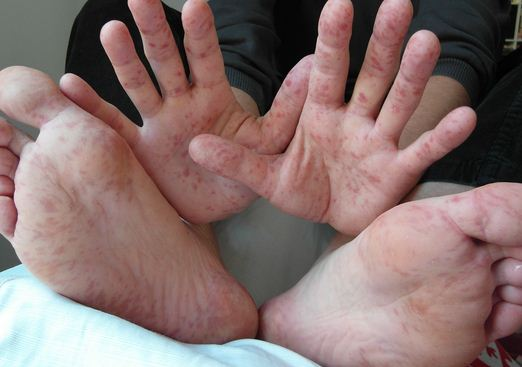 What Causes Hand Foot And Mouth Disease