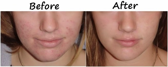 Face Acne Treatment - Natural Home Remedy - B & G Fashion