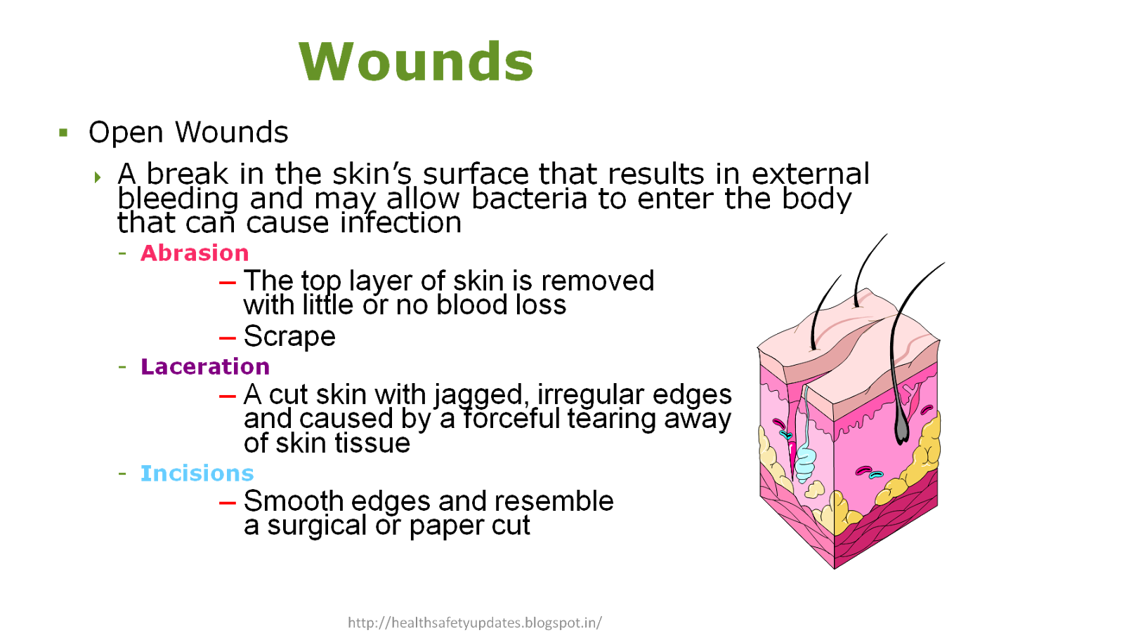 Type Of Wounds Amp Bleeding And It S First Aid Measures