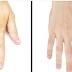 Certaines personnes ont des veines qui se voient à travers leur peau : nous vous expliquons pourquoi