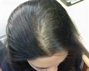 Haarausfall beste Lösung