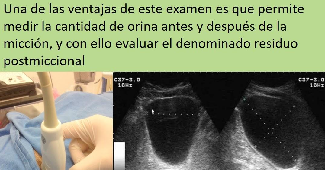 Prostatacancer
