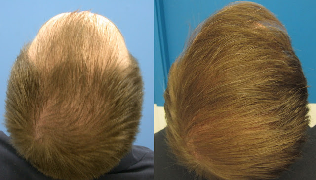 Diffuse Loss of Hair