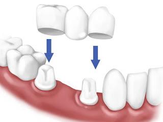 Bọc răng sứ quận 10 ở bác sĩ Mai Xuân Ngọc Nha khoa uy tín quận 10