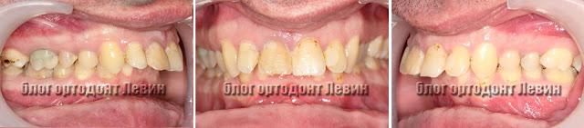 Ретрогения нижней челюсти пациента с ретинироваными восьмерками