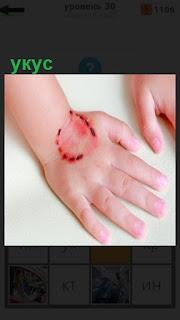 на ладони руки сверху имеется укус круглой формы