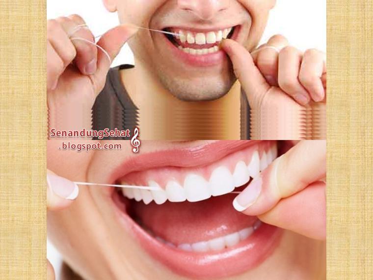 5 Cara Menghilangkan Karang Gigi Secara Alami Senandung Sehat
