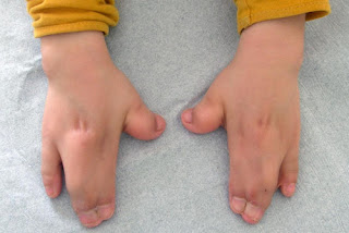 Webbed fingers as the classic manifestations of Apert syndrome pictures