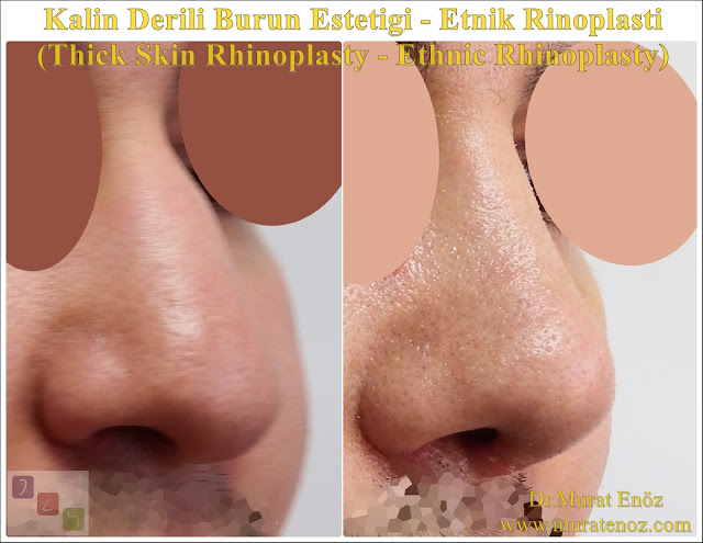 Ethnic rhinoplasty in nen  Istanbul - Ethnic nose job in Istanbul - Ethnic nose surgery in men Istanbul - Nose job in Turkey - Ethnic rhinoplasty in men Turkey - Ethnic rhinoplasty in Turkey - - Ethnic expert nose job surgeon - Ethnic rhinoplasty surgeon in Istanbul - Black nose job - Rhinoplasty for ethnic nose in men - Thick skin rhinoplasty - Thick skin rhinoplasty in men istanbul