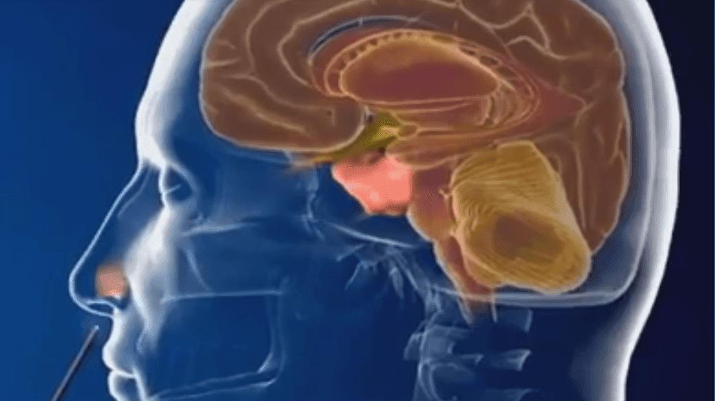 Benign-Tumor-Nose-Paranasal-Sinuses