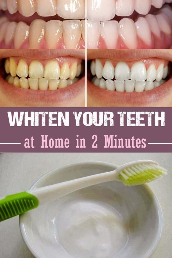 Use Baking Soda To Get Super White Teeth My Favorite Things