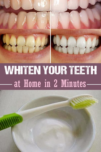 Use Baking Soda To Get Super White Teeth