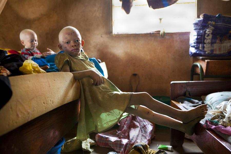 Foto: Ana Palacios. Albinos en Tanzania