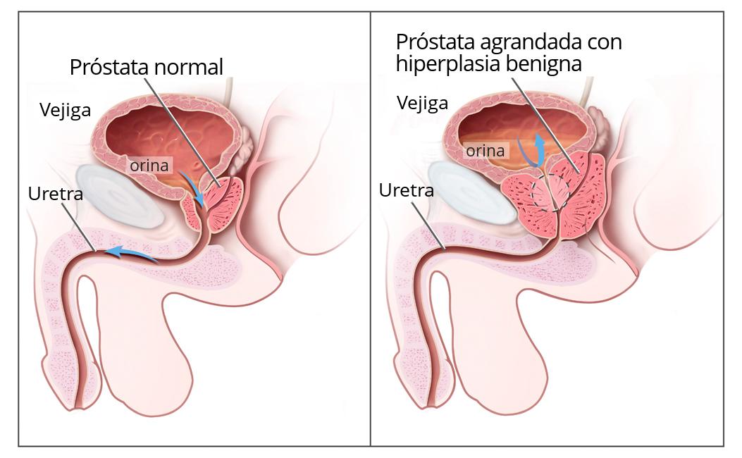 qué cosas benignas de próstata