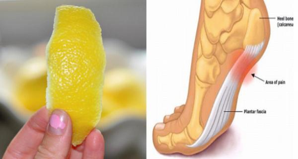 A Peel of Lemon Can Remove Joint Pain Forever Lemon%2Bpeel