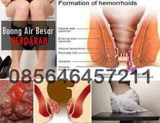 Penyakit Wasir atau Hemoroid Itu Apa Berbahaya