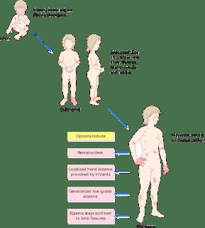 eczema_causes