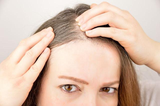 cara atasi uban, menghindari uban, rambut putih bikin galau, atasi rambut putih