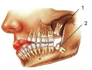 Penyakit Kista Pada Bagian Gigi Geraham Akhir, berikut adalah penjelasan dan penanganan untuk yang menderita kista