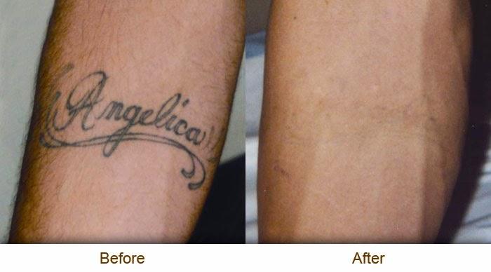 Eliminación De Tatuajes Con Tca Belagoria La Web De Los Tatuajes