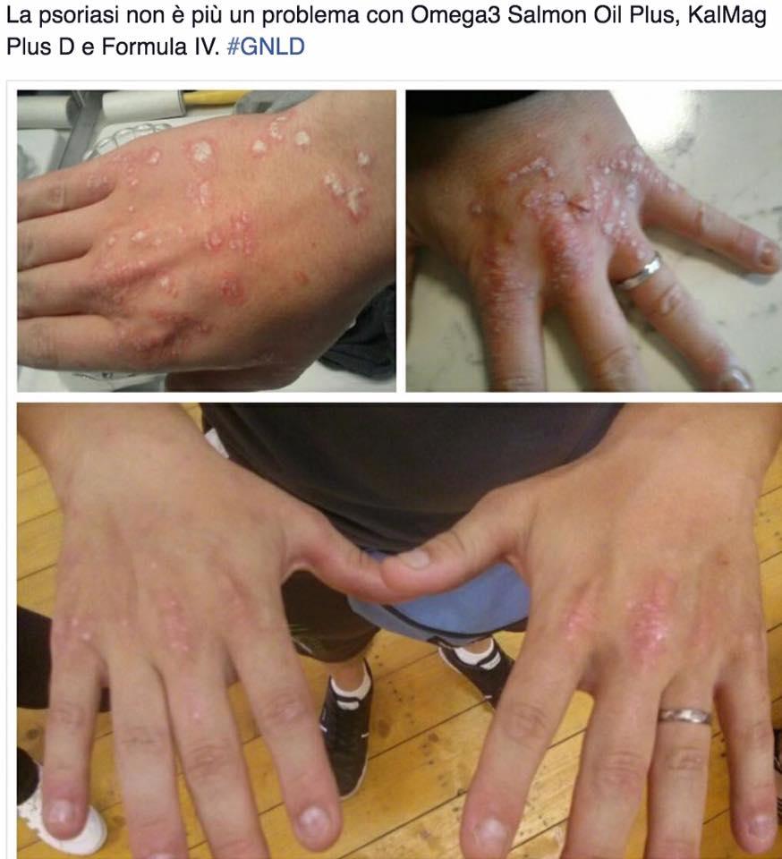 Con - proteina a reazione a eczema