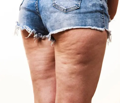 losing weight won't automatically get rid of cellulite