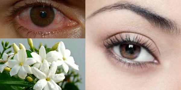 Ini Dia Cara Ampuh Untuk Menjernihkan Mata Merahmu dengan Bahan Alami