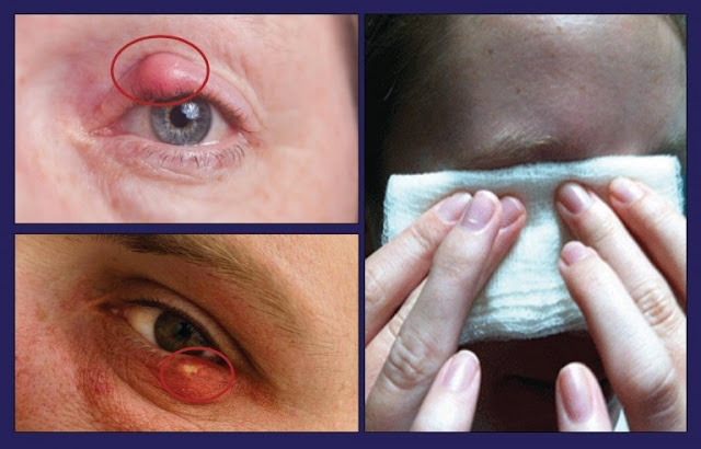 How to Get Rid Of A Stye, Naturally?