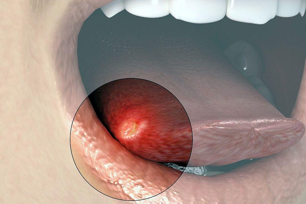 Oral Ulceration