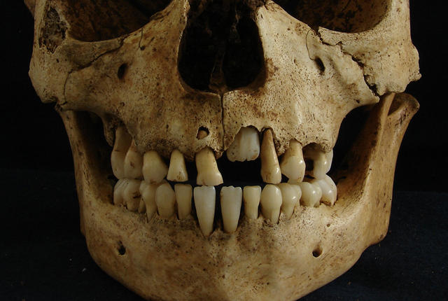 Hundreds of years later, teeth tell the story of people who didn't get enough sunshine